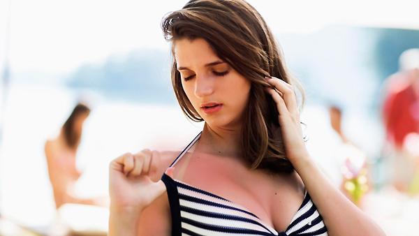 помочь обгоревшей на солнце коже